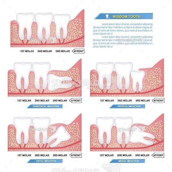 وکتور دندانپزشکی و دندان عقل