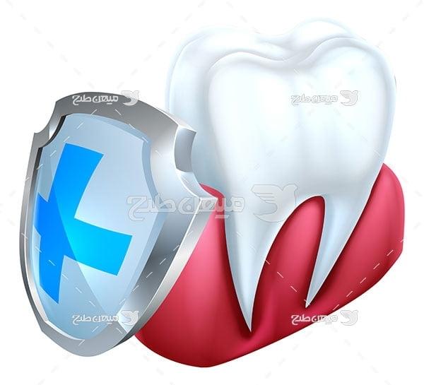 وکتور دندانپزشکی و محافظت دندان