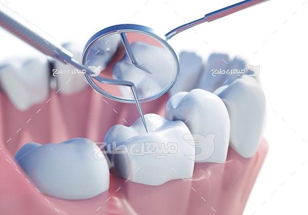 عکس تبلیغاتی پر کردن دندان