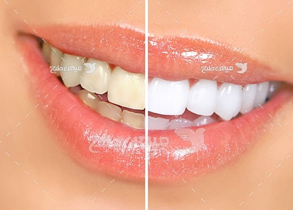 عکس تبلیغاتی دندانپزشکی و روکش سرامیکی