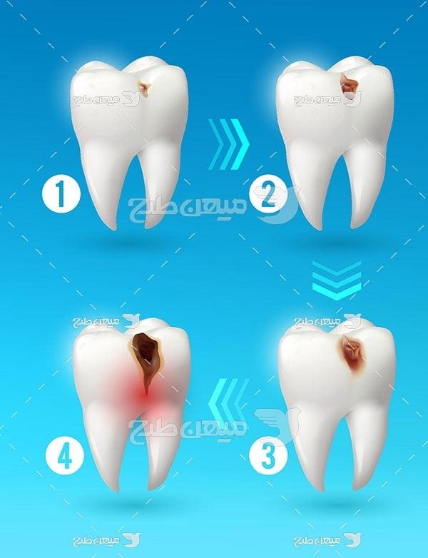 وکتور مراحل تخریب دندان