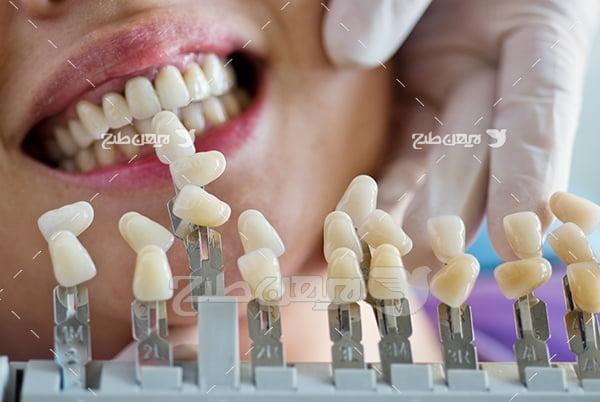 عکس لمینت دندان