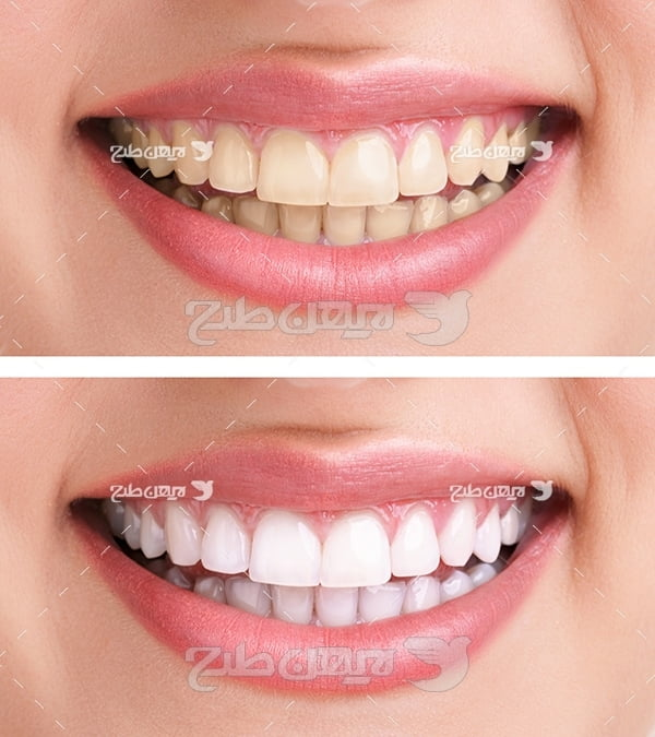 عکس دو لبخند با دندان سالم و خراب