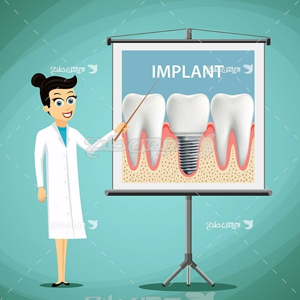 وکتور گرافیکی دندان و ایمپلنت