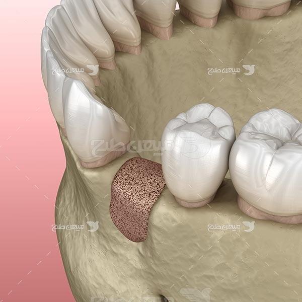 عکس پرکردن دندان