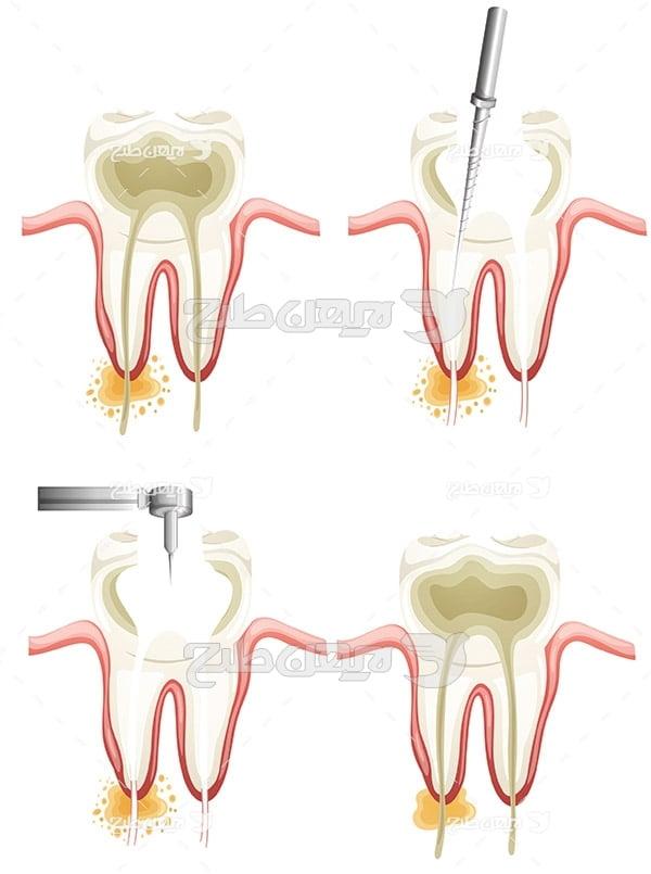 وکتور گرافیکی درمان دندان