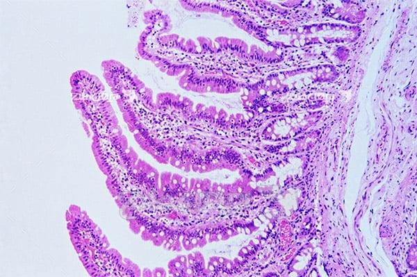 عکس باکتری