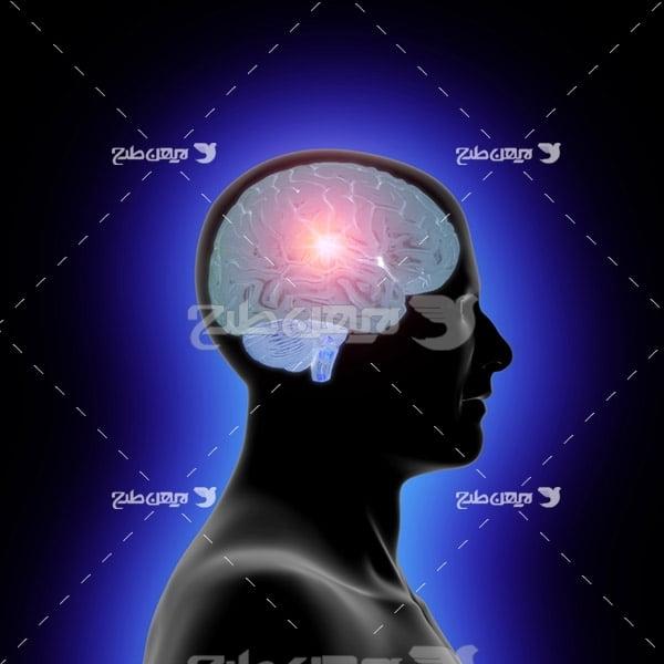 عکس مغز متفکر