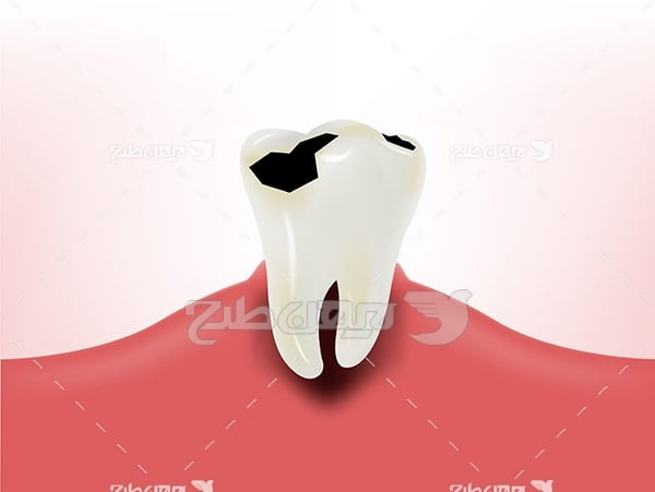 وکتور دندان آسیب دیده